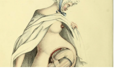 Midwifery flap book, G. Spratt, Obstetric Tables, 1835